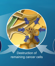 Treatment of Pancreatic Cancer